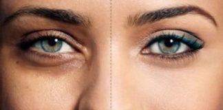 گودی چشم