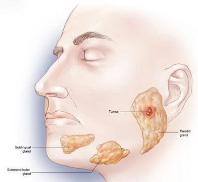 تومورهای بدخیم غدد بزاقی