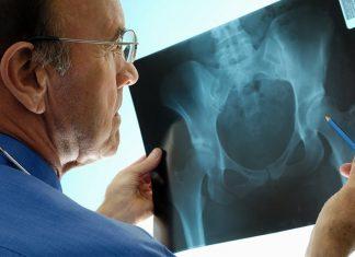 osteoporosis-treatment-heading