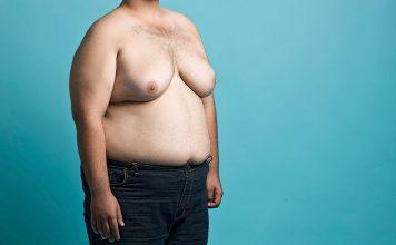 مردی با سینه زنانه