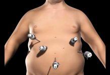 نحوه جراحی اسلیو گاسترکتومی یا کوچک کردن معده